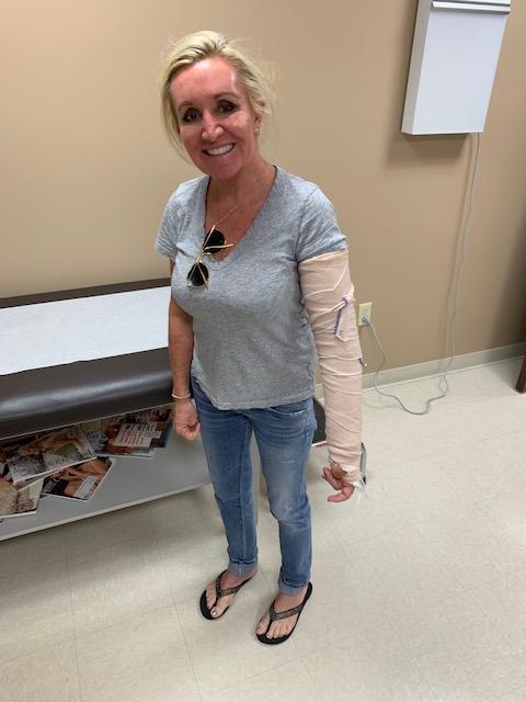 debbie breaks elbow